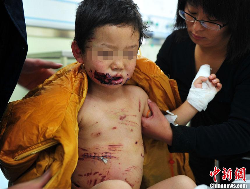 河北一3岁男童遭3条猛犬撕咬遍体鳞伤 -3岁男童遭3条猛犬撕咬遍体鳞