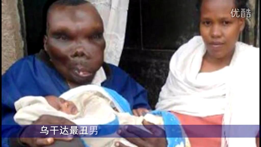 """乌干达最丑男子""""靠脸吃饭"""" 已生8个孩子"""