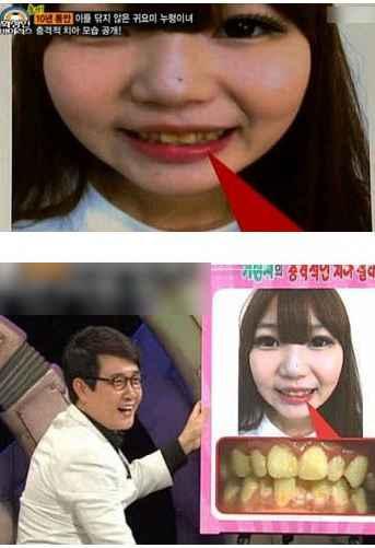 日韩综艺里的奇葩:整容成假人 十年不刷牙